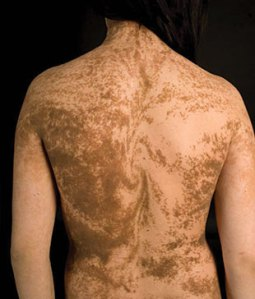 Epidermal mosaic skin pattern